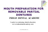 Mouth preparation for removable partial dentures /certified fixed orthodontic courses by Indian dental academy