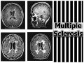 Multiple sclerosis: Medical and Nursing Managements