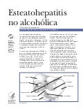 Global Medical Cures™ | Esteatohepatitis no alcoholica (NASH- Nonalcoholic Steatohepatitis), SPANISH