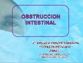 OBSTRUCCION INTESTINAL PARTE 1