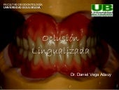 Oclusion lingualizada