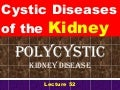 Polycystic kidney disease for students
