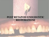 Post retained endodontic restorations