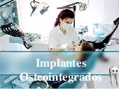 Implantes Osteosintegrados