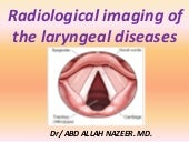 Presentation1.pptx, radiological imaging of the larngeal diseases.