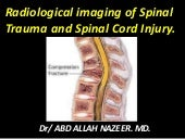 Presentation1.pptx, radiological imaging of spinal trauma and spinal cord injury.
