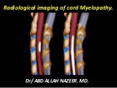 Presentation1.pptx,radiological imaging of cord myelopathy.