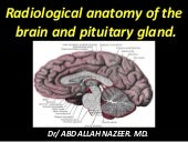 Presentation1.pptx, radiological anatomy of the brain and pituitary gland
