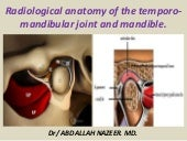Presentation1.pptx, radiological anatomy of the temporo mandibular joint and mandibule