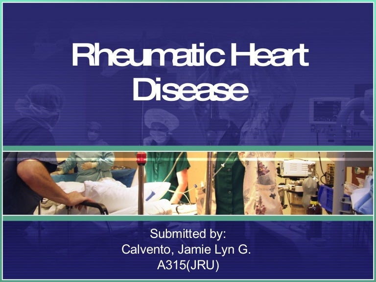 Rheumatic Heart Disease Ecg
