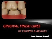 Different gingival finish lines (margins) of crowns and bridges