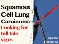 Squamous Cell Carcinoma: Looking for tale-tell signs