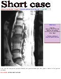 Short case...Spinal metastasis