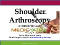 Shoulder Arthroscopy surgery & Treatment