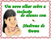 Sindrome De Downn