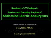 Spectrum Of Ct Findings In Rupture ...