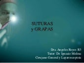 Suturas y grapas