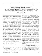 The Pathology Of Endometriosis