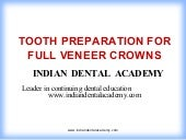 Tooth preparation for full veneer c...