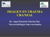 Trauma Craneoencefalico AS