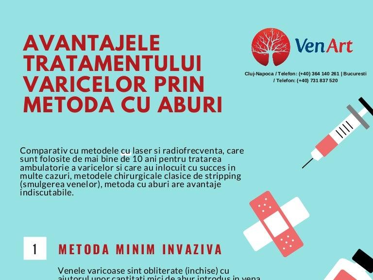 tratamentul metodelor de tratare a venelor varicoase