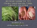 0940 Recent Developments in Teff, Ethiopia's Most Important Cereal and Gift to the World