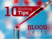 10 Working Tips for Blood Test