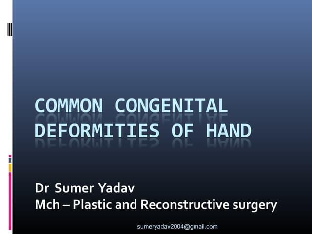 common congenital deformities of hand