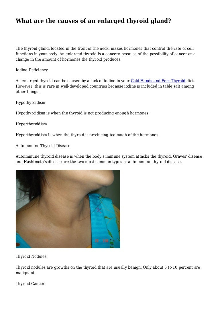 What Are The Causes Of An Enlarged Thyroid Gland