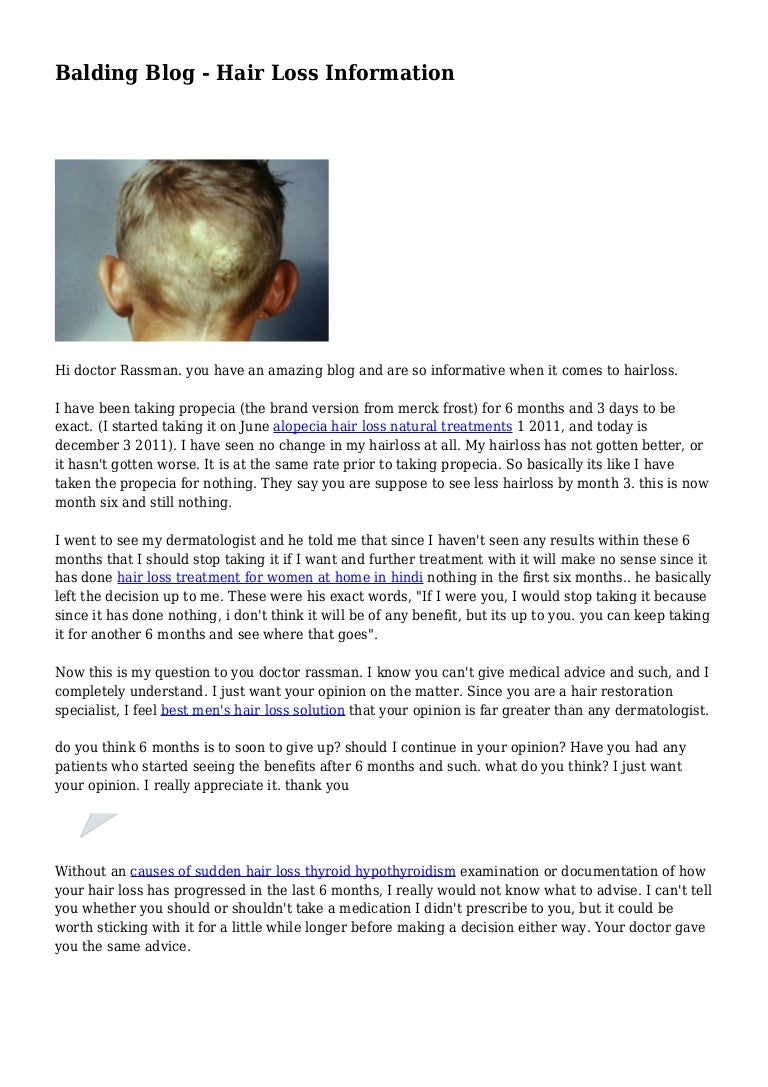 Balding Blog - Hair Loss Information