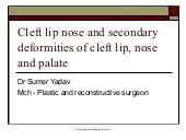 secondary deformities of cleft LIP AND NOSE