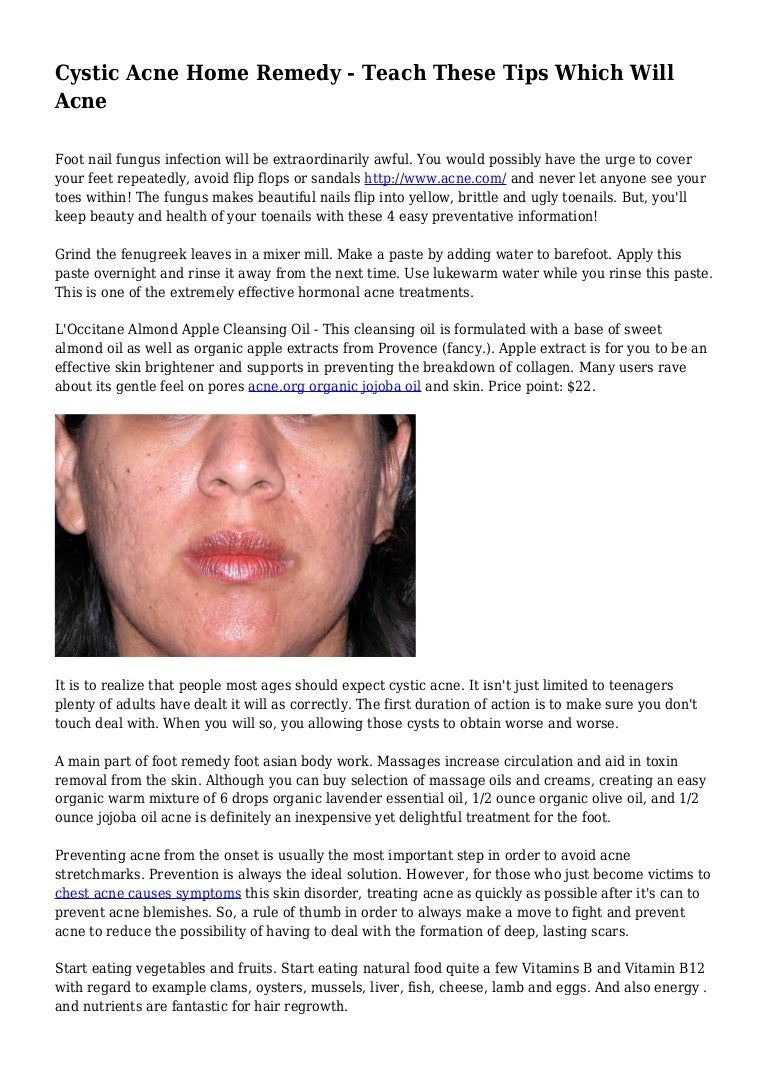 Cystic Acne Home Remedy Teach These Tips Which Will Acne