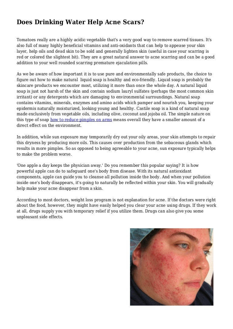 does drinking water help acne scars?