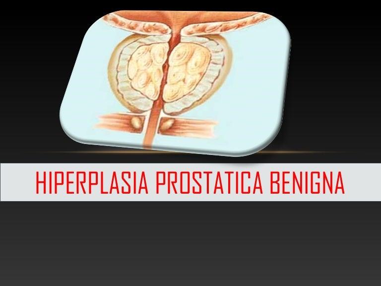 Hiperplasia prostática localizada benigna con síntomas del tracto urinario inferior