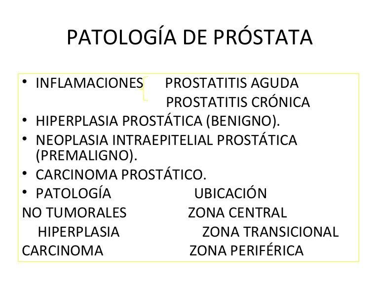 prostatitis bacteriana y cáncer de próstata