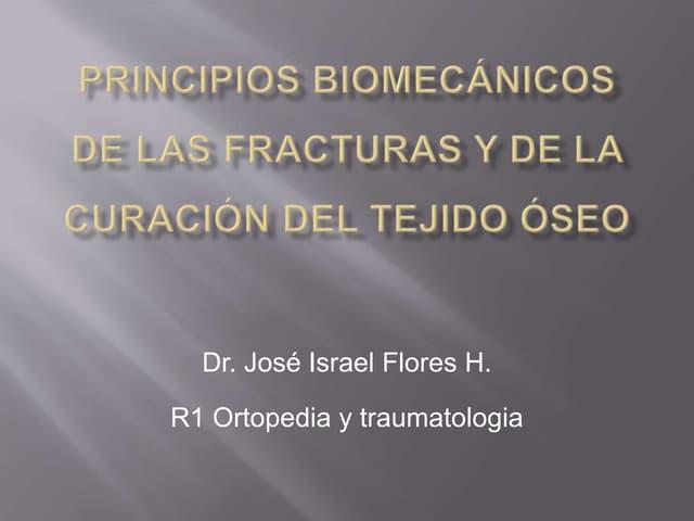 Principios biomecánicos de las fracturas