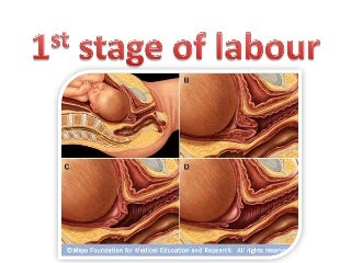 1st stage of labour
