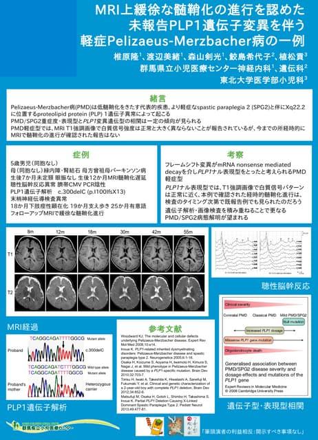 MRI上緩徐な髄鞘化の進行を認めた未報告PLP1遺伝子変異を伴う軽症Pelizaeus-Merzbacher病の一例@小児神経学会2014浜松