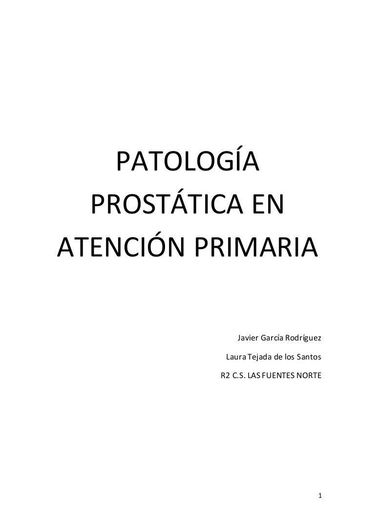 Pautas para la biopsia de próstata en hombres 40-49 sin PSA 25