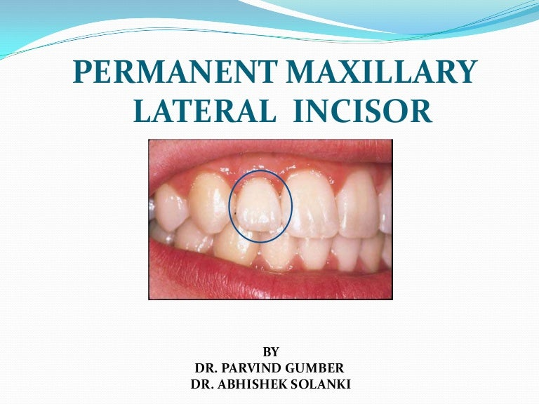 Permanant Maxillary Lateral Incisor