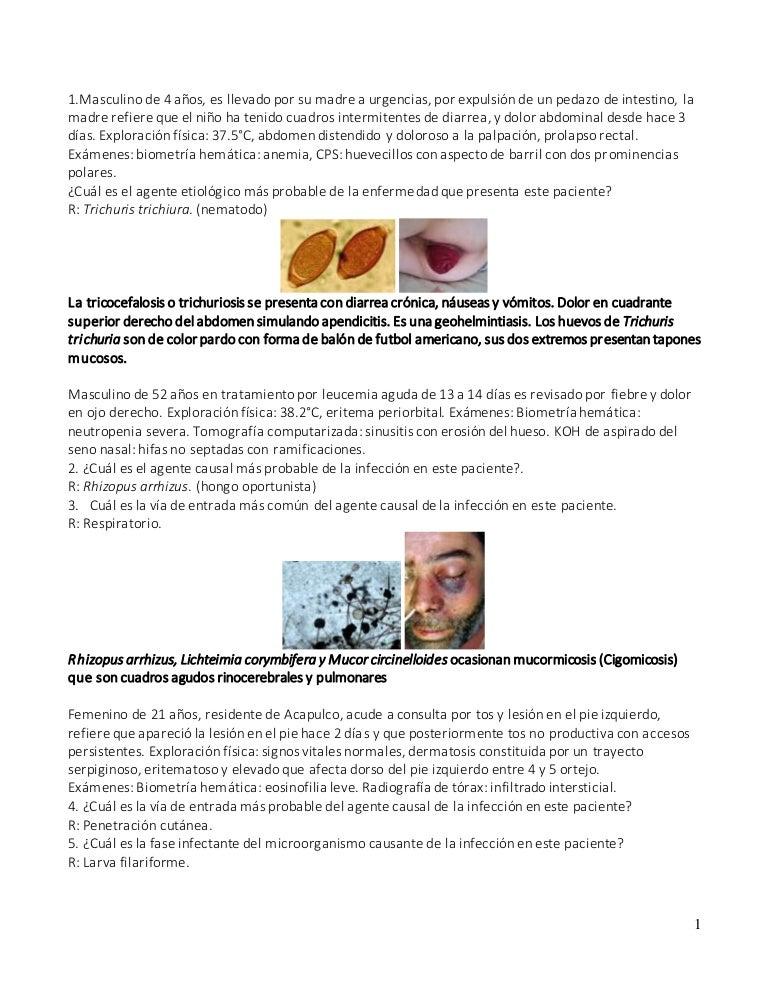 síntomas de muerte por infección de levadura sistémica