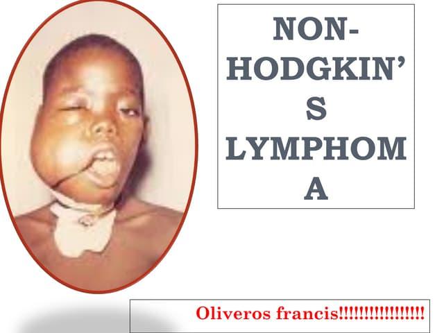 non-hodgkin's-lymphoma