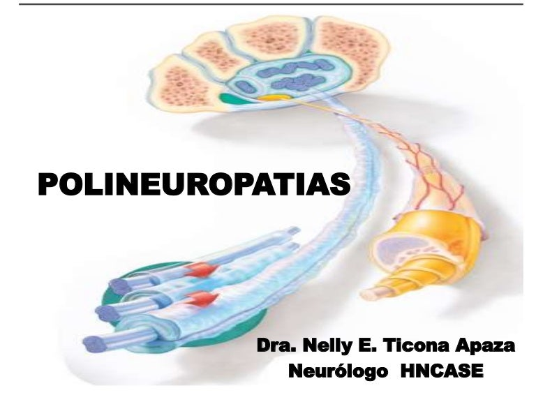 diabetes neuropatía gd1a