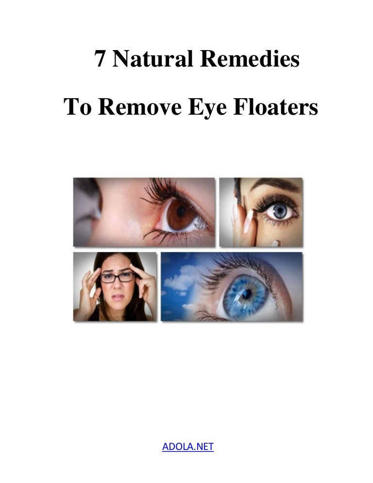 7 Natural Remedies To Remove Eye Floaters
