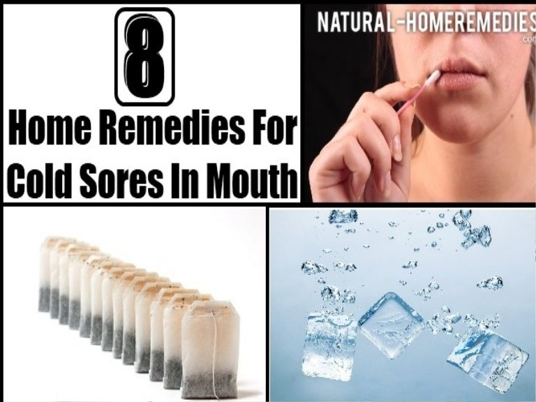 8 Home Remedies For Cold Sores In Mouth