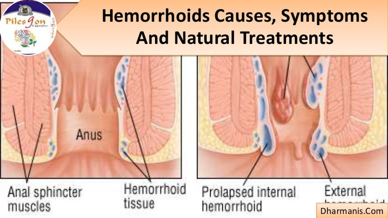 hemorrhoids causes, symptoms and natural treatments, Human body