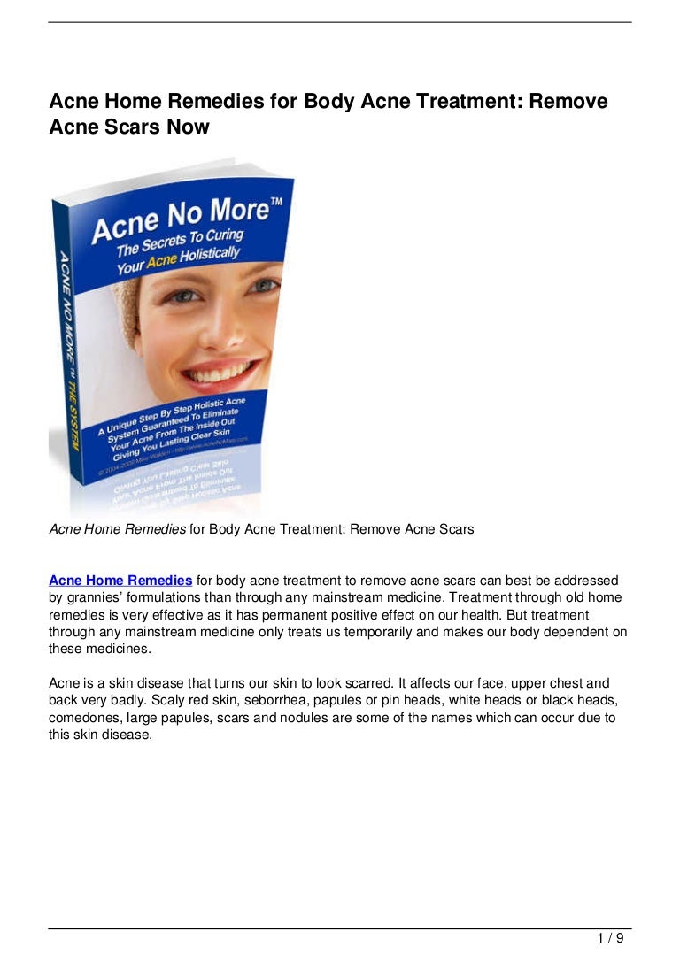 Acne Home Remedies For Body Acne Treatment Remove Acne Scars Now
