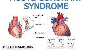 Acute Coronary Syndrome - Overview