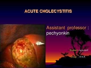 Acute cholecystitis.