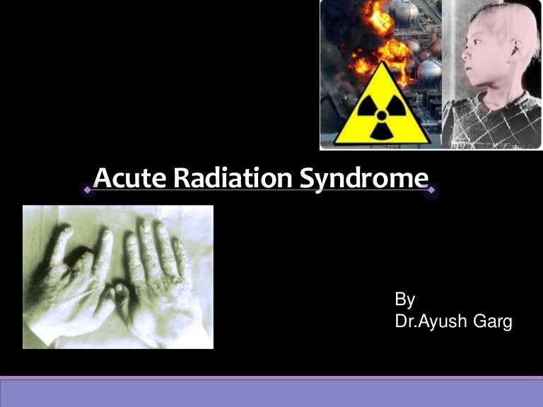 Acute radiation syndrome prodromal phase